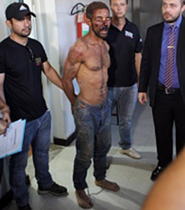 Pictures in Brazilian press show Lopes covered in cuts and bruises, sustained when furious locals attacked him after he was arrested by police