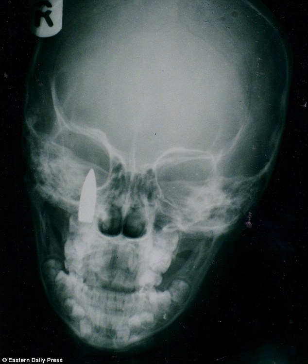 Horror: Tenneh was given an x-ray after she started complaining of headaches. The technician had expected to discover some damage from what they believed was a wound caused by a rock. But they were stunned to discover the bullet lodged behind her right eye
